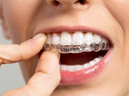 5 Reasons to Choose Invisalign®