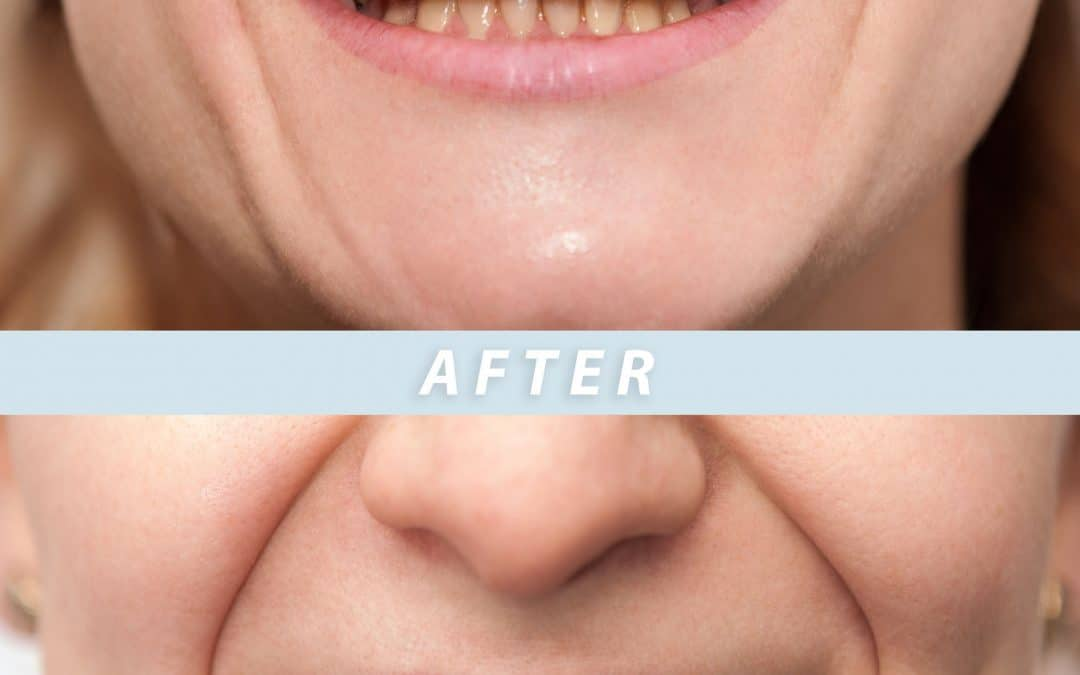 How to Tell if You Qualify for Veneers